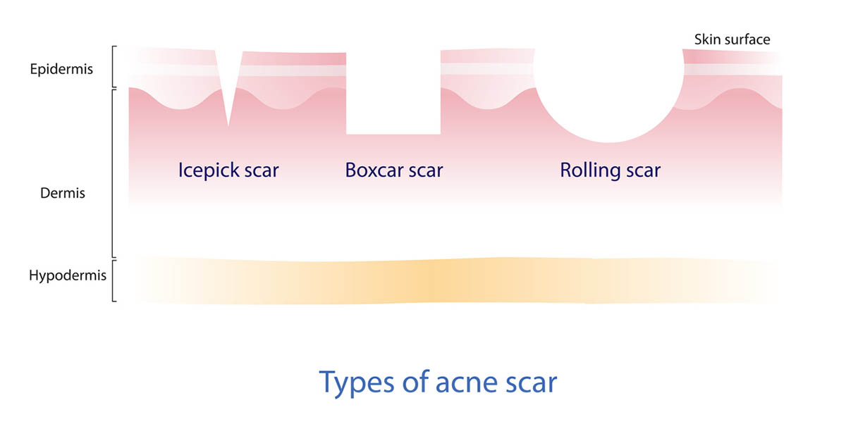 Types of acne scars vector illustration