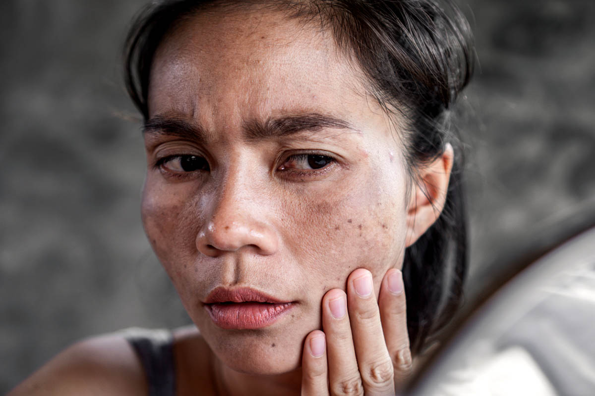 Asian woman with dark spots on face
