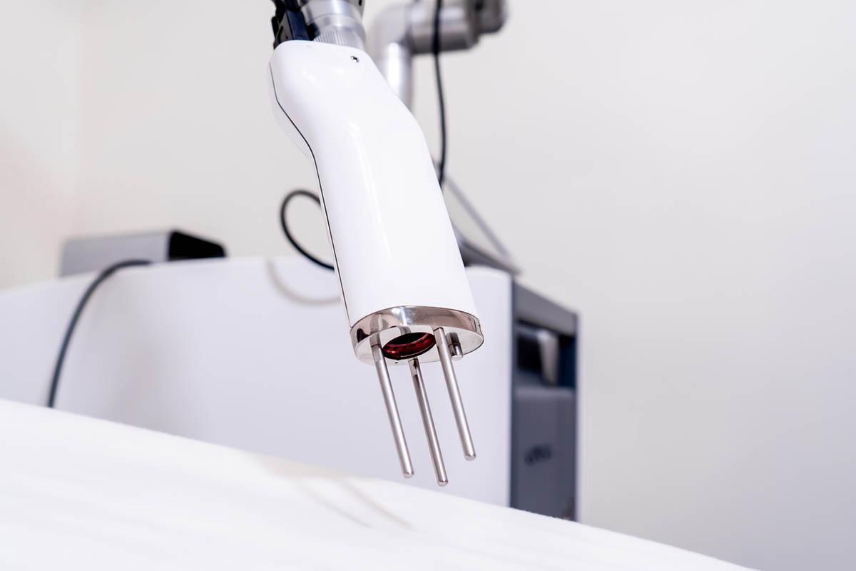 picosecond laser for pigmentation