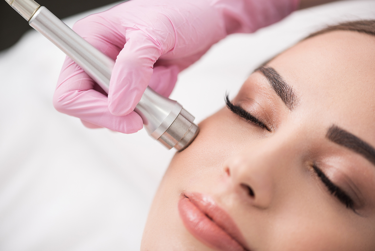 treatment with microdermabrasion