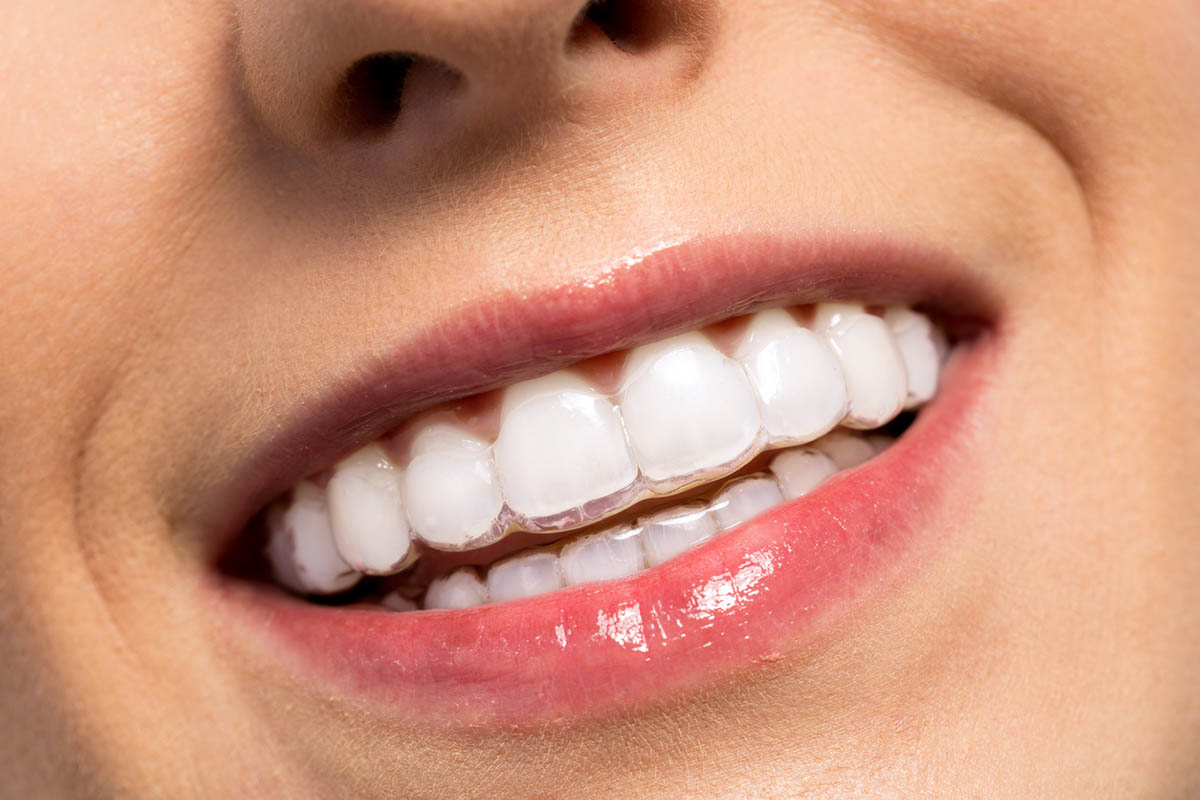 Smiling girl wearing invisalign