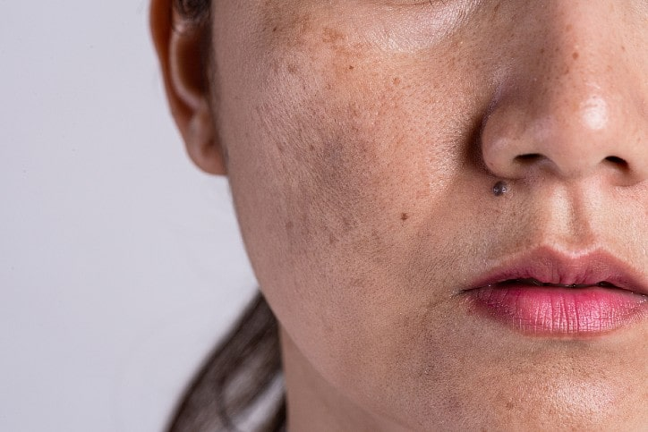 Lady suffering from pigmentation on face